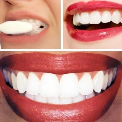 როგორ გავითეთროთ კბილები 3 წუთში სახლის პირობებში