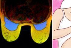 აი, რატომ არ უნდა დაიძინოთ ბიუსტჰალტერით! და მკერდის ტკივილის კიდევ 7 მიზეზი